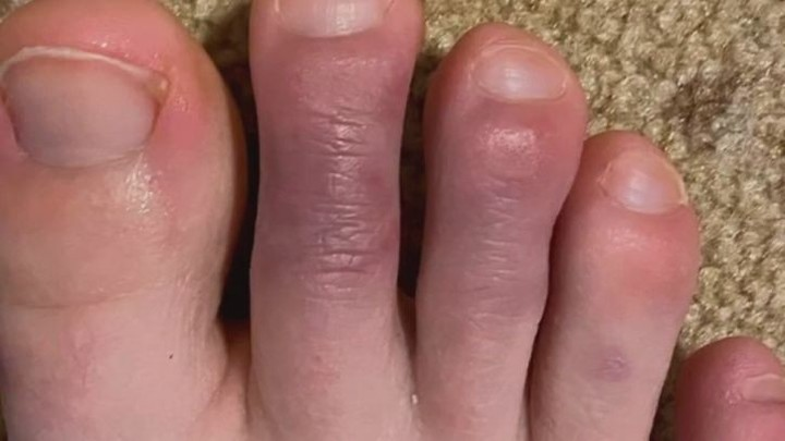 'COVID toes' are emblematic of how much is still unknown about the disease