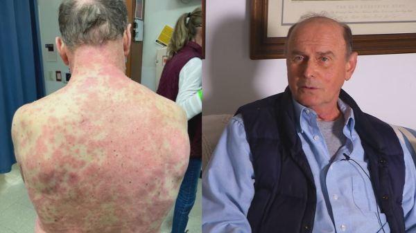 Goochland County man suffers 'rare' severe reaction to COVID-19 vaccine